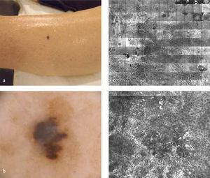 (a) Imagen clínica de melanoma maligno, (b) Dermatoscopía, Microscopía confocal panoramica, (c) Microscopia confocal en zona de atipia celular severa.