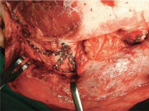 Reconstrucción quirúrgica fractura panfacial a través de acceso coronal.