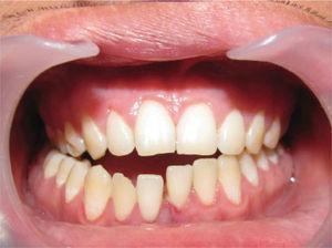 Fractura mandibular. Se observa desplazamiento dentario entre incisivos centrales y pérdida de la continuidad del arco dentario.