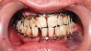 Bloqueo intermaxilar mediante arcos de Erich y elásticos en fractura mandibular.