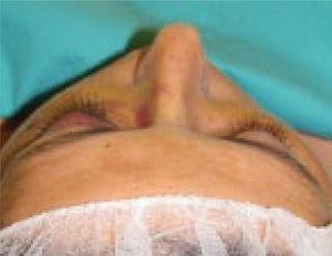 Disminución franca de la proyección del cigoma derecho, por fractura cigomática ipsilateral.