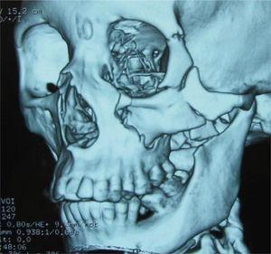 TC de una disyunción malar izquierda, compromiso de suturas frontomalar, cigomático-alveolar, reborde infra-orbitario y arco cigomático.