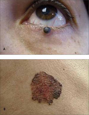 Carcinoma basocelular pigmentado.