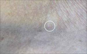 Aspecto de un C.B a ojo desnudo. En el círculo se aprecia pequeña pápula color piel.