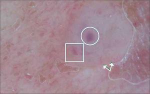 C.B con dermatoscopio. Nodulos ovoideos (círculo), telangiectasias (flecha) y glóbulos de pigmento (rectángulo.).