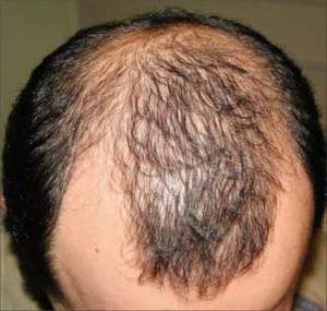 Alopecia androgenética masculina.