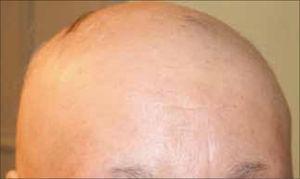 Alopecia areata más compromiso parcial de cejas.