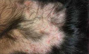 Alopecia Areata.