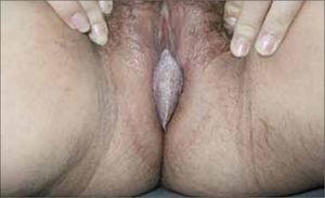 Condiloma acuminado vulvar gigante.