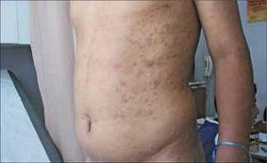 Sífilis Secundaria. Exantema máculo-papular en tórax, vdrl 1/256.
