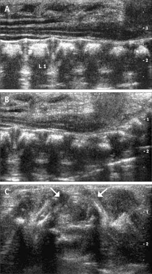 Imágenes longitudinales de US a nivel lumbosacro, obtenidas con transductor lineal de alta resolución; se demuestra cono medular en ubicación baja (A, B). En corte transversal de una vértebra lumbar se observa ausencia parcial del arco posterior (C); con flechas se señalan los extremos posteriores de los arcos posteriores presentes.