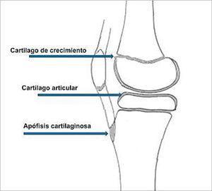 Distribución de tejido cartilaginoso en la rodilla de un niño (Modificado de O'Neill D, Micheli Lyle.: Lesiones por sobreuso en atletas jóvenes. http://www.g-se.com/pid/688/).