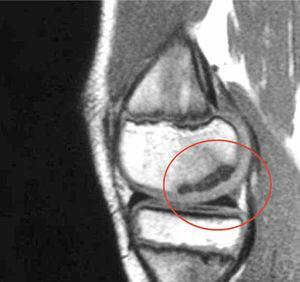 El mismo caso de la Figura 9. La RM demuestra lesión estable por indemnidad del cartílago articular.