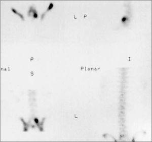 Captación elevada del radiofármaco en el arco posterior (pars interarticular) L5 en un adolescente con dolor lumbar en la extensión y radiografía que resultó sospechosa de lisis.