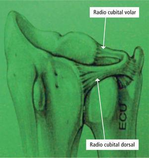 Articulación radio-cubital distal (RCD), está estabilizada por los ligamentos radio cubital volar y radio cubital dorsal.
