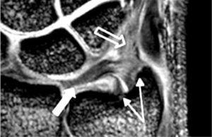 RM de alta resolucion, Corte Coronal. Es claramente observado el CFCT propiamente tal (disco articular) (flecha blanca), el ligamento triangular (flechas finas) y el menisco homólogo (flecha abierta)