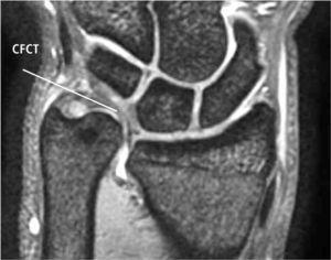 Morfologia del CFCT en el contexto de cúbito plus, es delgado, y está elongado a distal, en una forma de arco entre la cabeza del cubito y el carpo proximal.