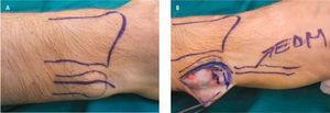 A. Planificación abordaje, es necesario cuidar la rama dorsal del nervio cubital. B. Exposición dorso cubital, identificación y protección rama sensitiva.