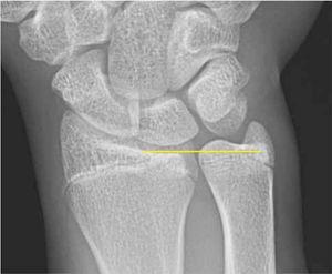 Paciente de 17 años, tenista profesional, dolor cubital de muñeca desde hace 1 año, cúbito plus, síndrome impactación cubital.