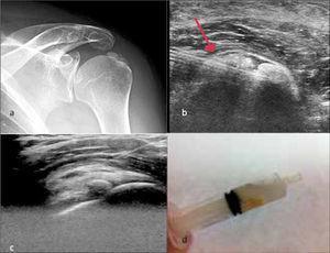 Paciente con enfermedad por depósito de hidroxiapatita. a.- RX de hombro muestra depósito cálcico a nivel del supraespinoso y bursa subacromiodeltoidea.