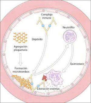 Depósito de complejos inmunes en la pared del endotelio, que activan la cascada de la coagulación y el complemento, generando sustancias quimiotácticas para neutrófilos. Estos dañan directamente las paredes vasculares por acción de sus enzimas. (adaptado de 12).