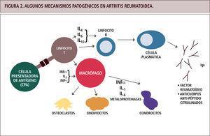 Algunos mecanismos patogénicos en artritis reumatoidea.