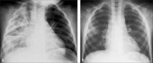 Pleuroneumonía excavada por Staphylococcus aureus en niña de 1 año (a), resuelta casi completamente en control efectuado 40 días más tarde (b).
