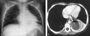 Antiguo caso de absceso pulmonar en neumonía de LII; escolar de 6 años previamente sano. a) Rx AP decúbito, b) TC con contraste.