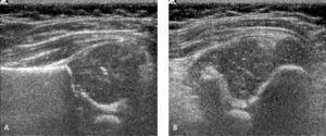 Ecografía de cadera, técnica de Harcke. Imagen longitudinal (A) y transversal (B) del acetábulo obtenidas con la cadera en flexión de 90° con maniobra de tirar y empujar el fémur. Cadera morfológicamente normal, estable.