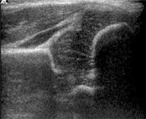 Ecografía de Cadera, método de Graf. Cadera normal, Tipo I.