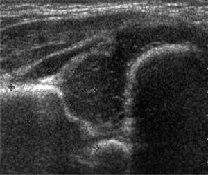 Ecografía de Cadera, método de Graf. Cadera inmadura, paciente menor de 3 mees. Tipo IIa.