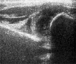Ecografía de Cadera, método de Graf. Cadera descentrada, cartílago del techo desplazado hacia craneal, Tipo III.
