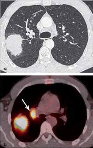 a, b: Adenocarcinoma de 7.0 cm de diámetro de contornos finamente espiculados en lóbulo superior derecho (a). En (b) el PET-CT muestra intensa captación del radiofármaco por el tumor primario y presencia de adenopatías hiliares ipsilaterales también hipermetabólicas (flecha). T2b-N1.
