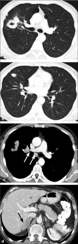 a, b, c, d: Masa excavada, probablemente carcinoma escamoso, en lóbulo superior derecho (a) y nódulo tumoral en lóbulo medio (b). Adenopatías hiliares e infracarinales ipsilaterales (flechas en c) y metástasis suprarrenal bilateral (flechas en d). T4-N2-M1b.