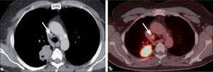 a, b: Tumor de células escamosas excavado de 5.0 cm de diámetro (a) con adenopatía paratraqueal derecha baja (flecha en a y b). El PET-CT muestra actividad metabólica en ambas lesiones. T2a-N2.