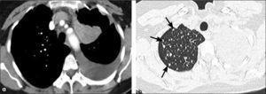 a, b: Adenocarcinoma del lóbulo superior izquierdo de 5.0 cm de diámetro con derrame pleural (a) y metástasis hematógenas en el pulmón contralateral (flechas en b). T2a-M1a.