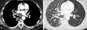a, b: Adenocarcinoma de 3.5 cm de diámetro en lóbulo inferior derecho (flecha negra) con adenopatías hiliares y mediastínicas ipsilaterales e hiliares contralaterales (flechas blancas en a). T2a-N3. Extensa linfangitis carcinomatosa con engrosamiento nodular del intersticio axial y de septos interlobulillares tanto en lóbulo inferior derecho como en lóbulo medio (b).