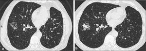 a, b: Progresión de adenocarcinoma mínimamente invasivo (a) a adenocarcinoma invasivo (b). En (a) se observa lesión de aproximadamente 3.0 cm de diámetro de opacidad en vidrio esmerilado con un mínimo componente sólido. En (b) hay significativa progresión del componente sólido.