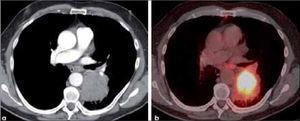 a, b: Tumor mayor de 7.0 cm de diámetro en lóbulo inferior izquierdo y de contornos discretamente irregulares, sugerente de carcinoma de células grandes (a). El PET-CT muestra significativa actividad metabólica glucídica del tumor (b).