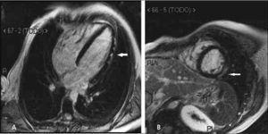 Imágenes con adquisición tardía post-gadolinio en cuatro cámaras (A) y eje corto (B) que demuestran áreas de impregnación epicárdicas (flechas) compatibles con el diagnóstico clínico de miocarditis de origen viral.