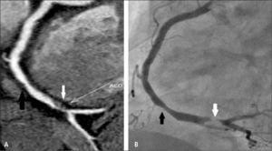 Placas no calcificadas en arteria coronaria derecha en TC (A) y angiografía convencional correspondiente (B) produciendo estenosis moderada (flecha negra) y severa (flecha blanca).