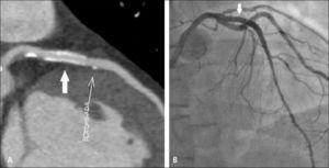 Stent con diámetro mayor a 3 mm cuyo lumen permeable es visible en TC (A), con adecuada correlación con la angiografía convencional (B), existiendo además placas calcificadas produciendo mínima estenosis.