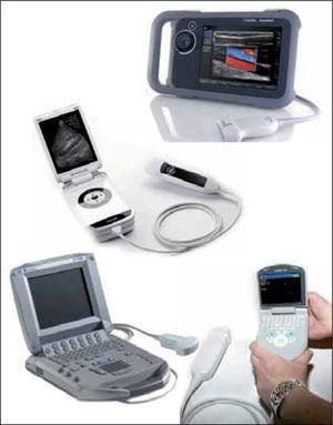 Diferentes equipos de ultrasonido disponibles en el mercado chileno, aptos para ser utilizados en el box de reanimación para la realización de ecografía FAST. (Fuente: página web de fabricantes).