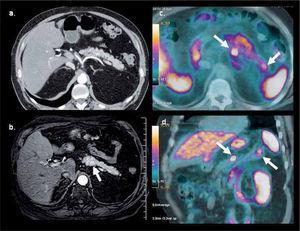 PET/CT con Ga68-DOTATATE en hombre de 64 años con gastrinemias elevadas. La tomografía computada (a) y resonancia magnética (b) muestran una sutil lesión hipervascular sospechosa en cuerpo pancreático. PET/ CT (c, d) confirma nódulo de alta captación en cuerpo pancreático y otro más pequeño en la cola, no visible con TC ni RM. La histología confrma gastrinoma de 8 mm en cuerpo y de 4 mm en cola.