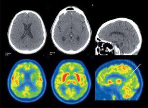 Paciente de 71 años con demencia. El PET/CT F18-FDG evidencia una severa alteración metabólica de gran parte del manto cortical incluyendo el cíngulo posterior (flecha), con preservación relativa del área motora, compatible con enfermedad de Alzheimer avanzada. Nótese la captación conservada lenticular, de núcleos caudados y tálamos.