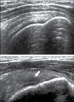 Tendón supraespinoso, eje largo: a) normal, b) foco de tendinosis (flecha).