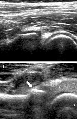 Articulación radiohumeral por anterior: a) normal, b) fractura oculta a radiografía en cabeza del radio (flecha), con derrame articular ecogénico posiblemente hemático (asterisco).
