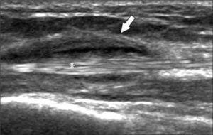 Tendón extensor, eje largo (asterisco): tenosinovitis con engrosamiento y líquido en la vaina tendínea (flecha).