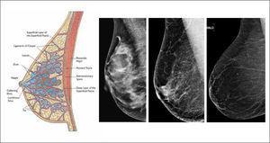 Dibujo de mama y diferentes patrones de densidad mamaria en mamografía