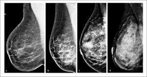 Clasificación bi-rads acr. patrones de densidad mamográfica a- Predominantemente adiposa, b- Densidades fibroglandulares dispersas, c- Heterogéneamente densa y d- Extremadamente densa.
